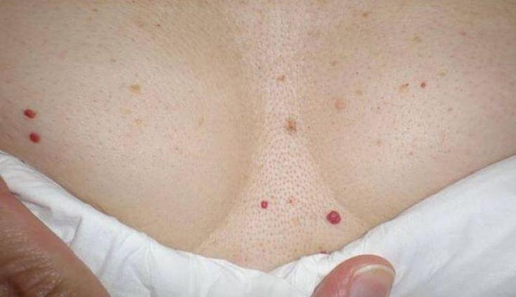 Что за красные точки на теле и как их удалить: отвечают дерматологи