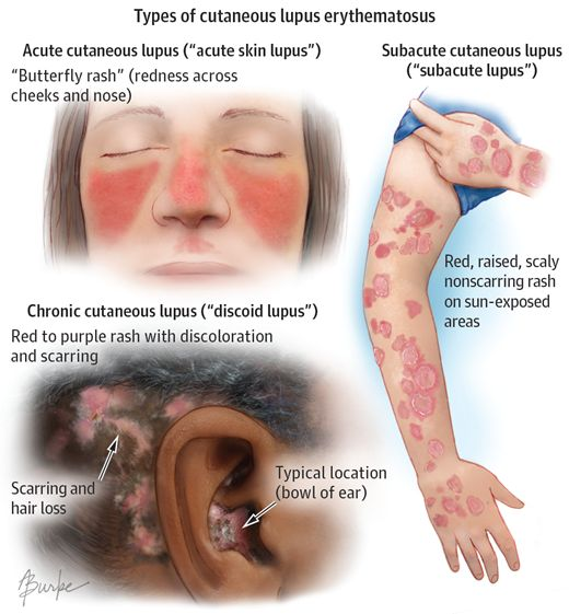Cutaneous Lupus Erythematosus. JAMA Dermatol. 2014;150(3):344. doi:10.1001/jamadermatol.2013.10393.