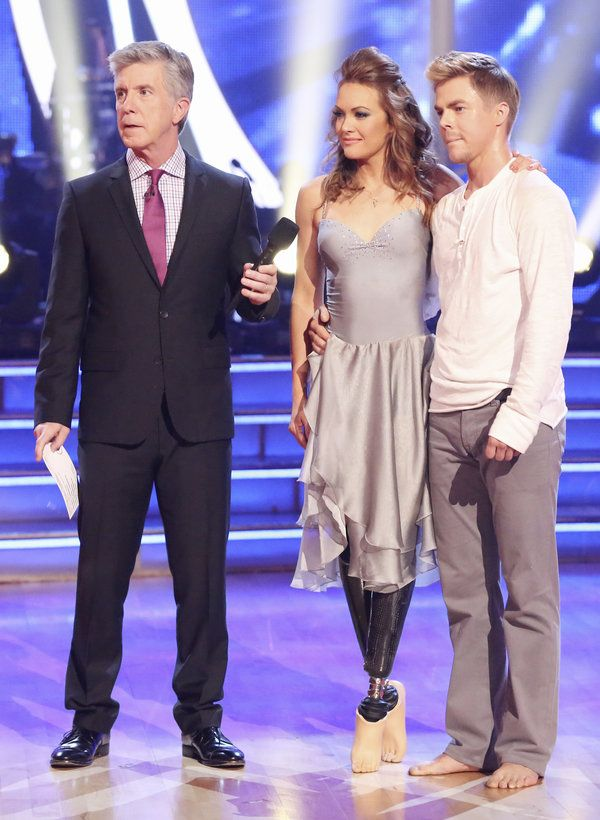 Tom Bergeron, Amy Purdy, Derek Hough At age 19 Amy Purdy was struck down with a serious illness that cost her a double amputation of both lower legs. What's stopping you from reaching for your dreams  http://downundermarketing.com