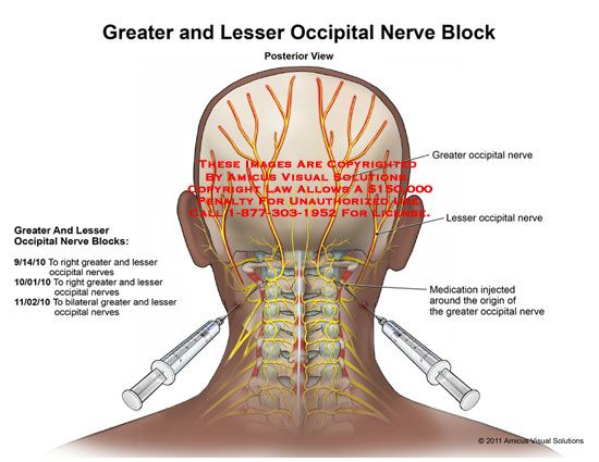 occipital neuralgia | Greater and Lesser Occipital Nerve Block...had one not long ago and looking forward to another soon to hopefully bring some relief to the occipital headaches.