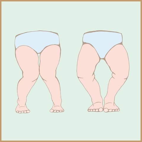 Genu Valgum (knock kneed); Genu Varus (bowlegged) - it's vital to have your child's feet and legs checked when they start school