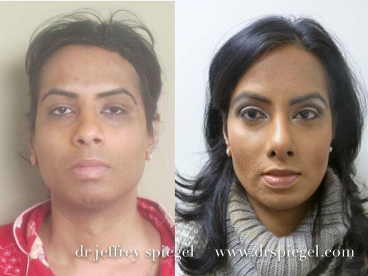 1000+ ideas about Facial Feminization Surgery on Pinterest ...