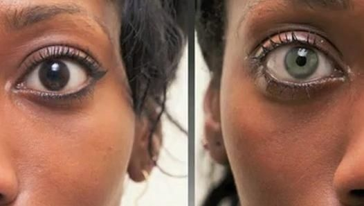 Eye implants that change your iris color. | 14 Bizarre Plastic Surgery Procedures That Will Make You Say WTF