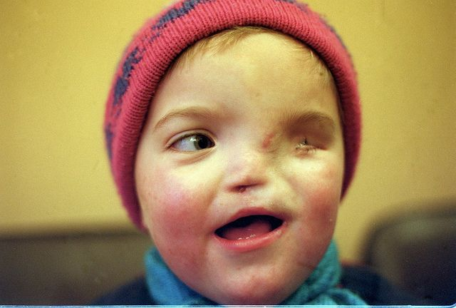 Birth defect caused by radiation exposure from the Chernobyl disaster.
