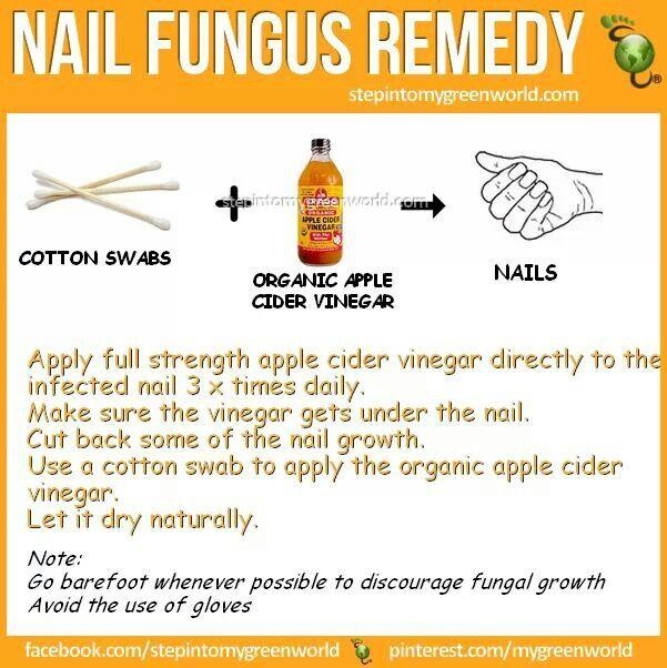 Best 25+ Toenail fungus remedies ideas on Pinterest | Toenail ...