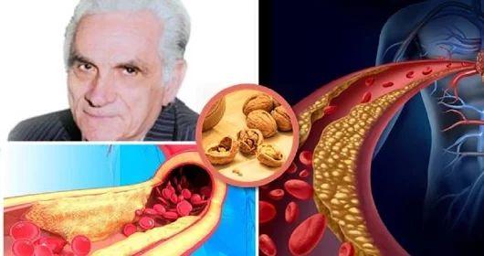 Egy neves terapeuta szerint: Csak egyetlen betegség létezik, a rossz vér! Nézd, hogyan lehet megtisztítani a vért a méreganyagoktól! - Ketkes.com