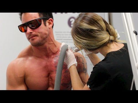TATTOO REMOVAL - Do you want it?