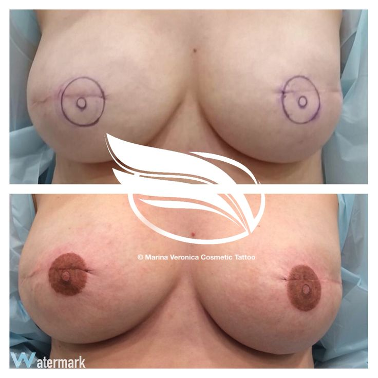 Cosmetic Tattoo of Nipple Areola after breast reconstruction following mastectomy on a breast cancer patient.
