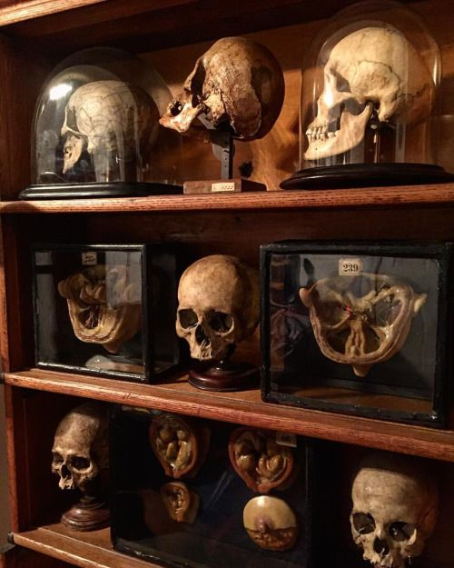 Human skulls and 19th century wax moulages of the nerves inside of the cranium…
