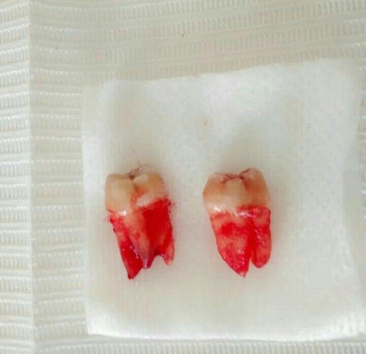 Terceros molares (muelitas del juicio)