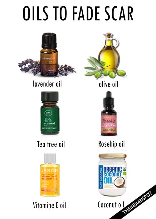 Oils to fade scar – coconut, vitamin e oil, lavender etc….