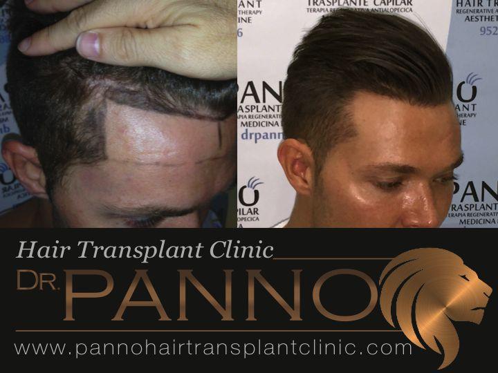 trasplante capilar natural del Dr. Panno