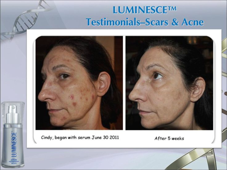 Results of skin care products.
