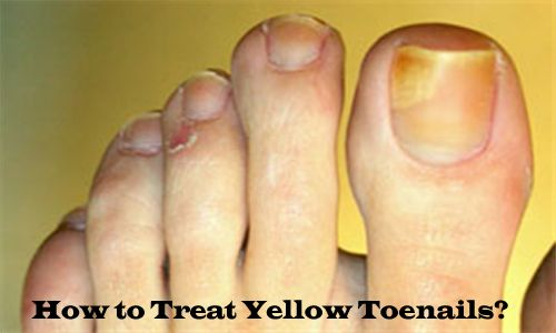 40 Best Images About Toe Nail Fungus Treatment On Pinterest