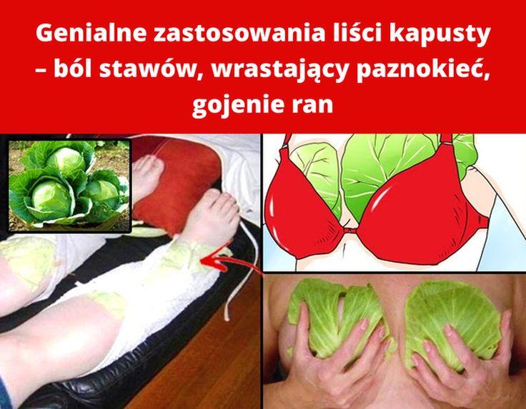 Genialne zastosowania liści kapusty – ból stawów, wrastający paznokieć, gojenie ran
