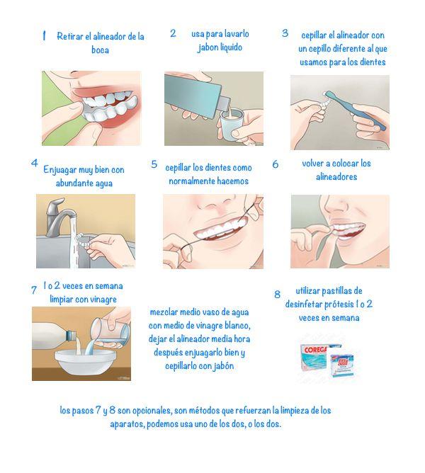 como limpiar los alineadores de ortodoncia invisible,férulas de descarga y retenedores de ortodoncia