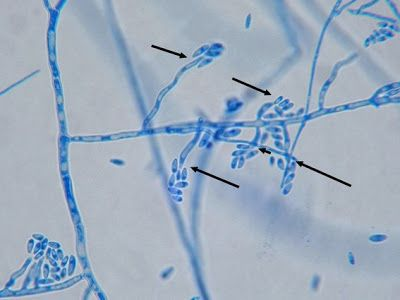Fun With Microbiology (What's Buggin' You?): Fusarium oxysporum Fusarium oxysporum (X400 LPCB: Nikon) Microconidia can be seen accumulating around the tips of the phialides