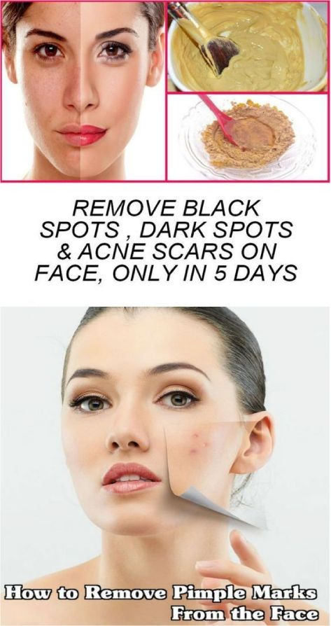 REMOVE BLACK SPOTS , DARK SPOTS & ACNE SCARS ON FACE, ONLY IN 5 DAYS