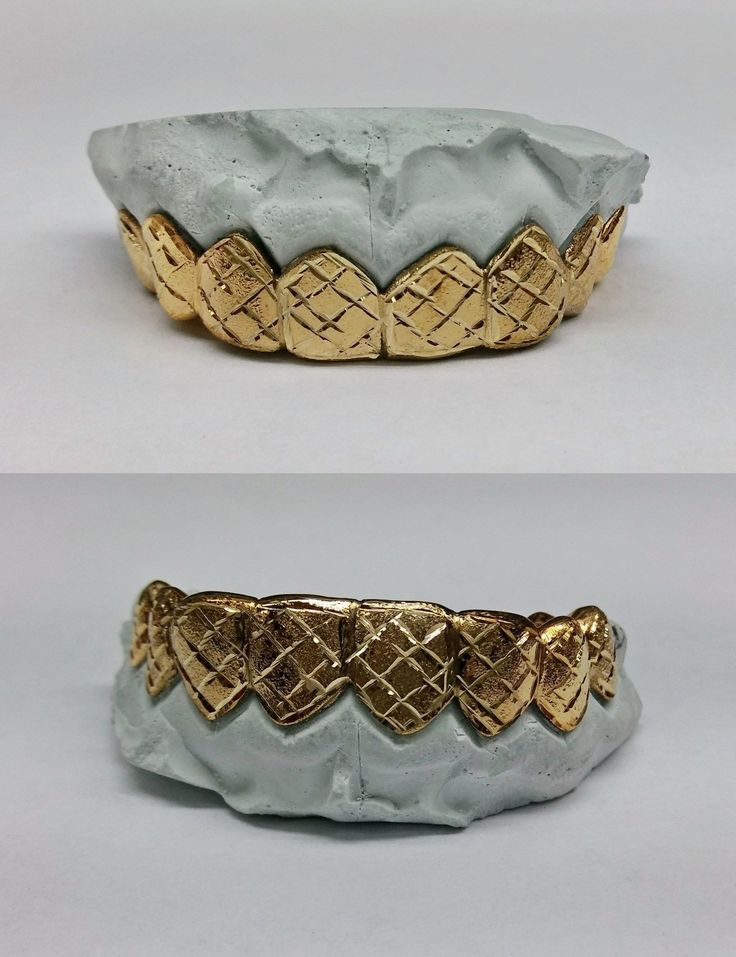 Grillz Dental Grills 152808: S. Silver 10K Or 14K Gold Custom Made Diamond Dust Cut Grill Grillz BUY IT NOW ONLY: $105.0