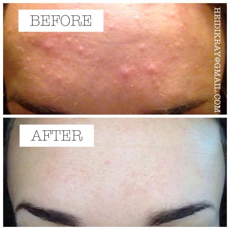 Testimony for Young Living oregano!  Malasezzia (or pityrosporum folliculitis) is a yeast infection that manifests in the skin. It looks like acne, and it itches like crazy. It can affect the face, neck, chest, and upper arms. There are many possible causes but less forms of treatment.  Nothing the dermatologist gave me worked. This after picture is 8 hours after applying 2 drops of oregano topically and taking 6 drops in a capsule. So happy with the results! Bumps are gone and no more…