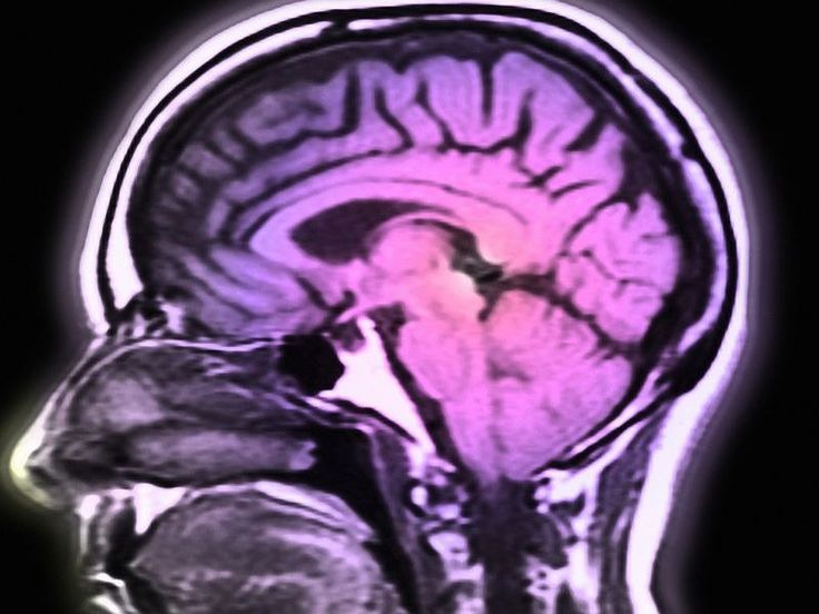 Cardiorespiratory fitness, white matter integrity tied to cognition   Medical Xpress - latest medical and health news stories   Bloglovin'