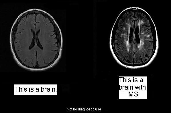 Mri Brain With Contrast Multiple Sclerosis Mri Scan Images Mri Brain Multiple Sclerosis Awareness Multiple Sclerosis