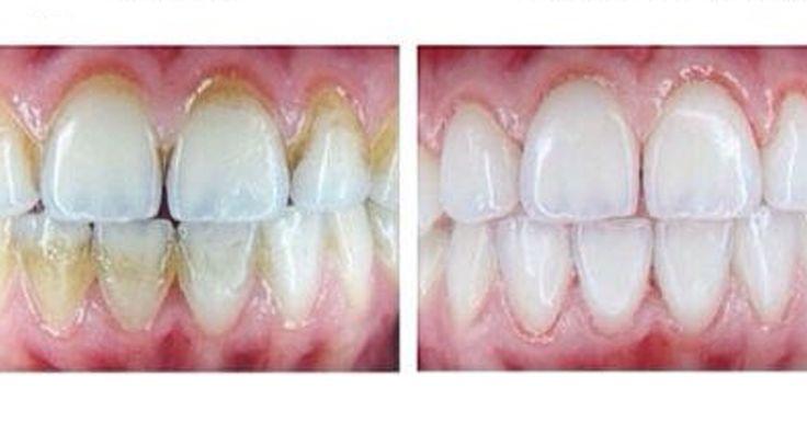 Для предотвращения образования зубного камня необходимо регулярно проводить профилактику его образования натуральными способами. Если зубной камень уже образовался, то предлагаем вам 10 простых способов легко удалить его без посещения стоматолога. Любите себя, придерживайтесь правильного питания и БУДЕТЕ ЗДОРОВЫ! Неправильная чистка может привести к образованию зубного налетаи тогда начинает образовыватьсязубной камень, затвердевший налет. Зубной камень может …