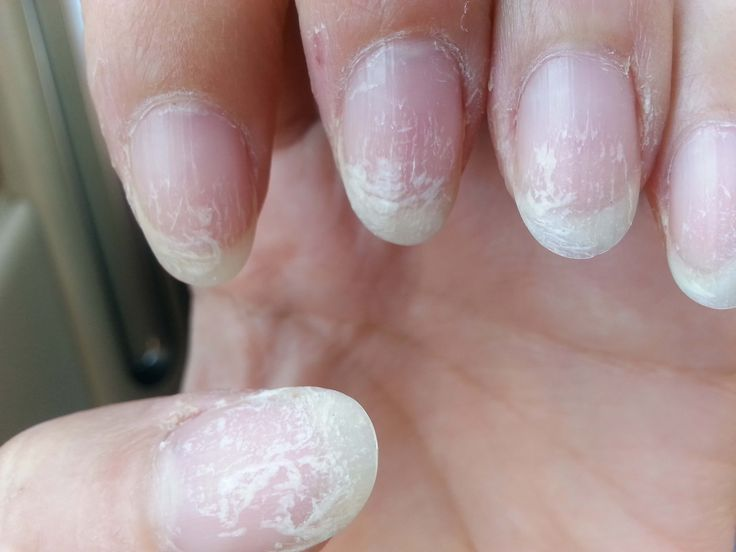 Do Gel Nails Damage Your Nails Hands Fingers Nails Pinterest Nails Gel Nails And Nail