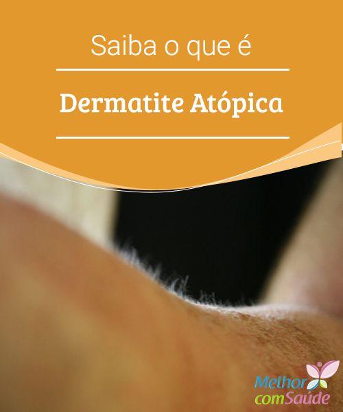Dermatite atópica saiba o que é   Dermatite atópica é uma doença crônica que causa inflamação da pele, levando ao aparecimento de lesões e coceira. Conheça alguns tratamentos caseiros.
