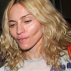 Madonna...Celebrity Plastic Surgery Disasters   Worst plastic surgery disaster?   WhatPoll?