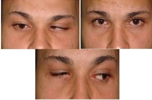 axenfeld reigers syndrome case study Summary a clinical case report is presented, which is representative of  axenfeld-rieger syndrome clinical examination demonstrated corectopia,  polycoria,.