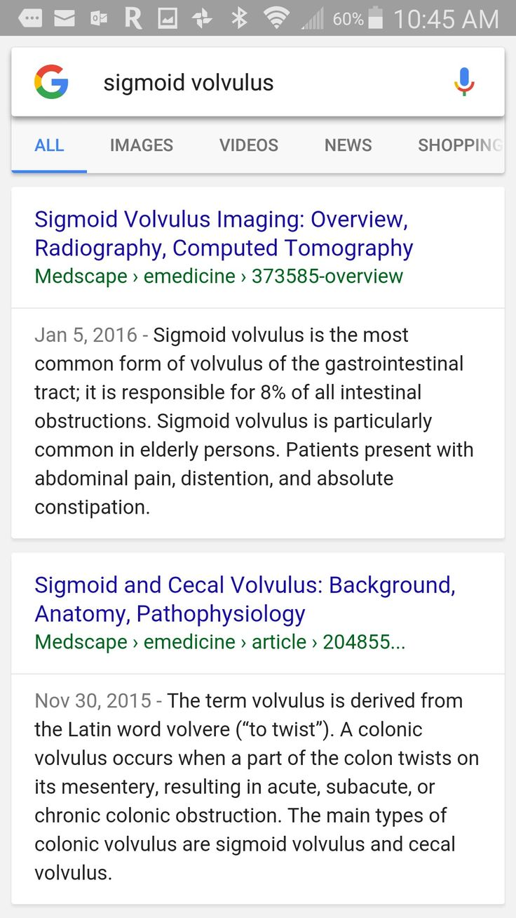 Sigmoid colon