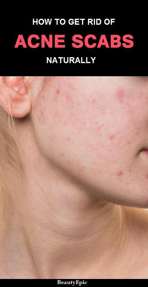 How To Get Rid Of Pimple Acne Scabs Naturally Beauty Acne Scab