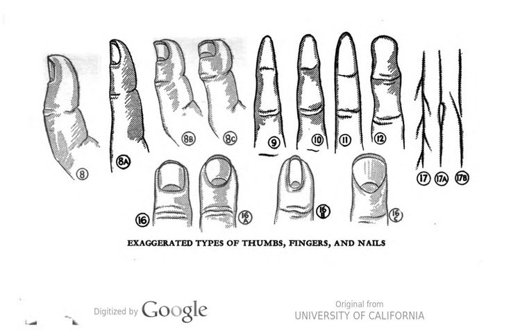 """""""Exaggerated types of thumbs, fingers, and nails."""" A chart to assist in reading palms. Your Invisible Self, by Sandra Sanderson. #palmistry"""