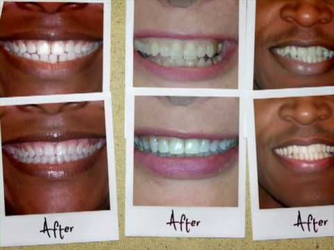 How 6 month braces work (video)