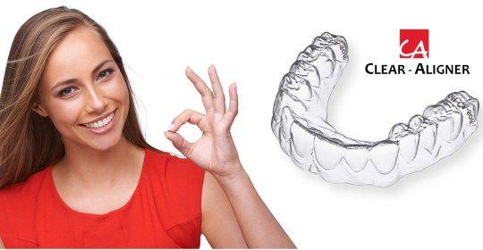 03 SIE 15 0 Aparat CLEAR ALIGNER Aparat CLEAR ALIGNER  Jest to komplet przezroczystych nakładek na zęby.Są one praktycznie niezauważalne (nie ma tu żadnych elementów metalowych jak w tradycyjnych aparatach stałych). Leczenie polega na noszeniu nakładek, aż do uzyskania zaplanowanego ustawienia zębów. W czasie ich noszenia Pacjent przychodzi na wizyty kontrolne, podczas których lekarz sprawdza dopasowanie aparatu oraz wykonuje inne zaplanowane czynności związane z regulacją zgryzu.