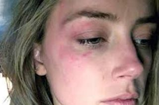 "Leaked Video Of Johnny Depp Beating Wife Amber Heard  Scroll to the bottom of this post to see all the recent Johnny Depp Amber Heard videos.TMZ reports that John Christopher ""Johnny"" Depp II lost his temper with his ex-wife Amber Laura Heard and she caught it all on tape. The actress told TMZ that she is not the person who leaked the video. While the actor is visibly upset and drunk in the video he does not ""beat"" her. He is seen slamming cabinets and pouring wine in the couple's kitchen…"