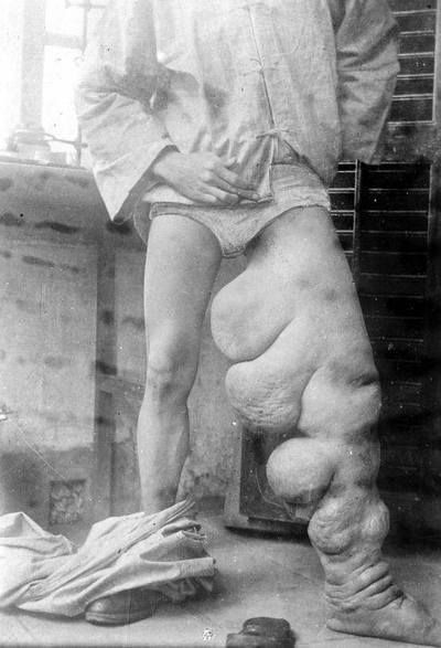 Elephantiasis, also known as Lymphatic filariasis is a tropical disease leading to an elephant-like skin swelling of the lower limb and genitals.