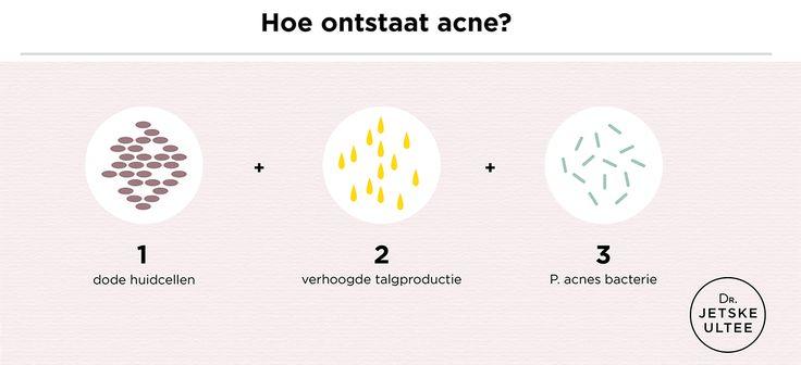 Acne Dr. Jetske Ultee | Hoe onstaat acne? Wanneer dode huidcellen (1) en talg (2) zic...