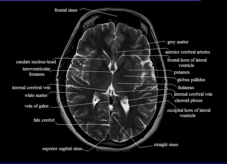 14 Best Baby Brains Images On Pinterest Neurology Ultrasound And