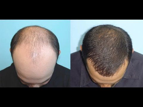 CASTOR OIL FOR HAIR REGROWTH  Massage with Castor oil and Coconut oil on your head. Keep it for 1/2 hour and wash it with mild shampoo.. you can see the difference within a month of time.   video courtesy: CREATE LIFE  Another Hair Regrowth technique - http://www.funinvideo.in/2017/02/how-to-treat-male-baldness.html