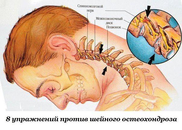 """Первые проявления шейного остеохондроза — боли в спине, головные боли, головокружение, """"мушки"""" в глазах, ухудшение слуха или шумы, а также покачивание при ходьбе в результате нарушения координации. Чтобы этого не случилось, предлагаем нехитрые упражнения, которые помогут вам победить остеохондроз и сберечь здоровье."""