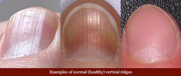 vertical-ridges-fingernails-normal