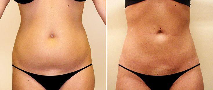 Thinking About Liposuction? Read This First