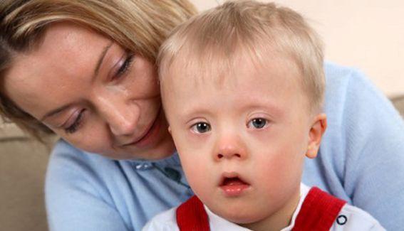 21 de marzo como día del síndrome de Down. ¿Qué es el Síndrome de Down? Rasgos o características típicas de una persona con síndrome de Down