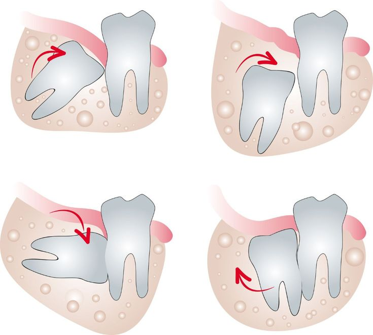 """Wisdom Teeth: Ever wonder why some people have to get their wisdom teeth removed, while others don't? if you have enough space in your jaw for them, they'll come in nicely and you can keep them forever. But for some people, there isn't enough room, which means they'll only come in, or """"erupt"""" only partially. This is problematic because it can lead to infection."""