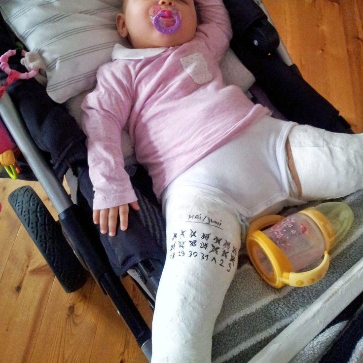 Baby im Fettweisgips - 10 wertvolle Tipps für Alltag und