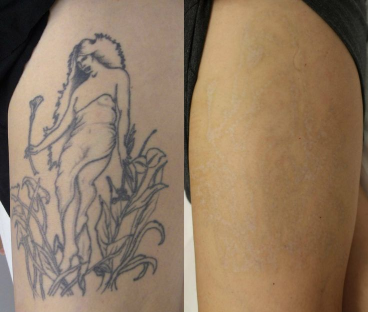 Tattoo temoval before and after pictures before and for Best tattoo removal los angeles