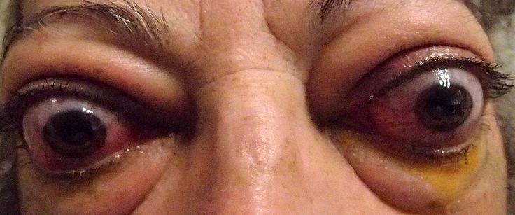 ESOFTALMO o PROPTOSI. Protrusione anomala del bulbo oculare causata da alterazioni localizzate nello spazio retrobulbare o, meno frequentemente, da un'orbita poco profonda. Può essere di origine traumatica o insorgere secondariamente a processi infiammatori cronici, a malformazioni vascolari o a tumori a localizzazione orbitaria o aventi origine endobulbare e successivamente invadenti l'orbita.