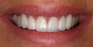 Porcelain Veneers are used to fix chipped or discolored teeth and give you a beatiful smile again. Get a personal consultation at your denist in Austin, TX!